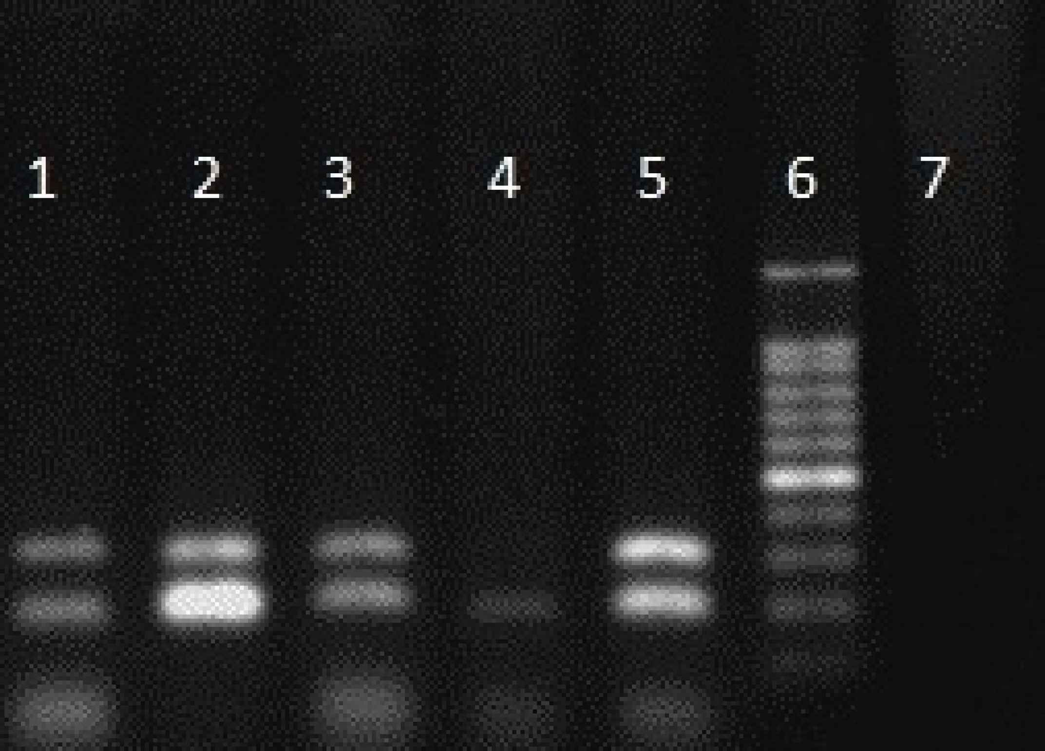 Products of multiplex PCR for eno, cna, ebps and bbp genes. Columns 1- 3: eno and cna genes. Column 6: marker