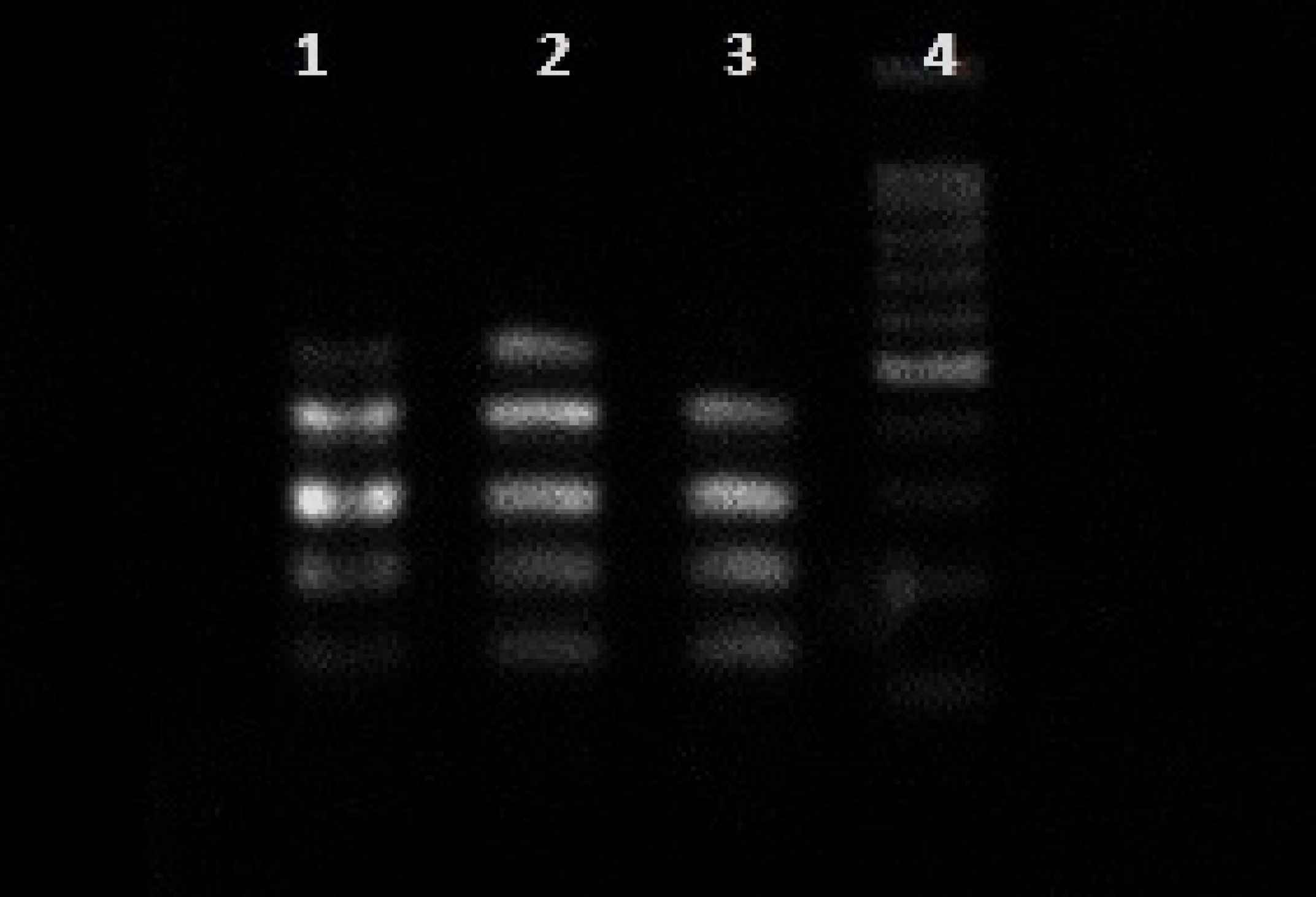 Products of multiplex for clfAB, fnbAB and fib genes. Columns 1 and 2: clfAB, fnbAB and fib genes. Column 4: marker
