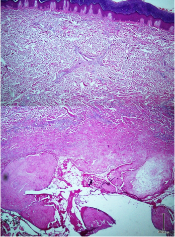 Fig. 1: Low power view of specimen biopsy shows deep-seated dermal cyst with villus-like projections into luminal space with surrounding fibrosis and inflammation (Hematoxylin-eosin, original magni-fication × 40)