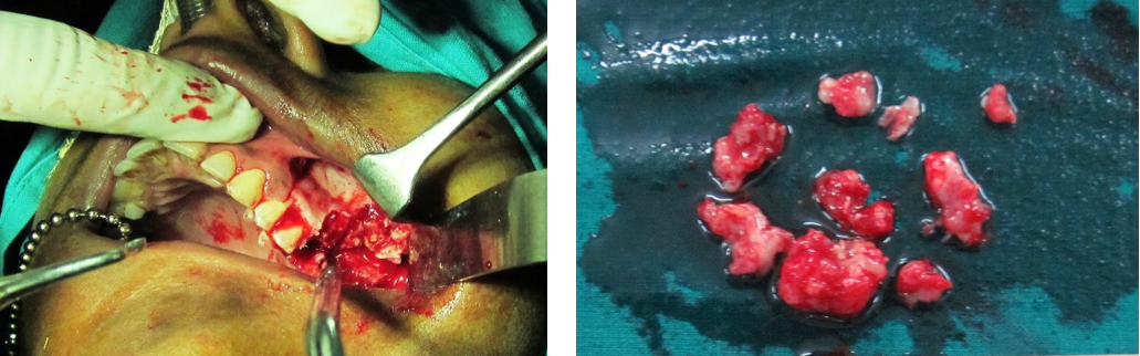 Fig. 3: Photograph showing surgical intervention and the gross specimen after surgery (a & b)