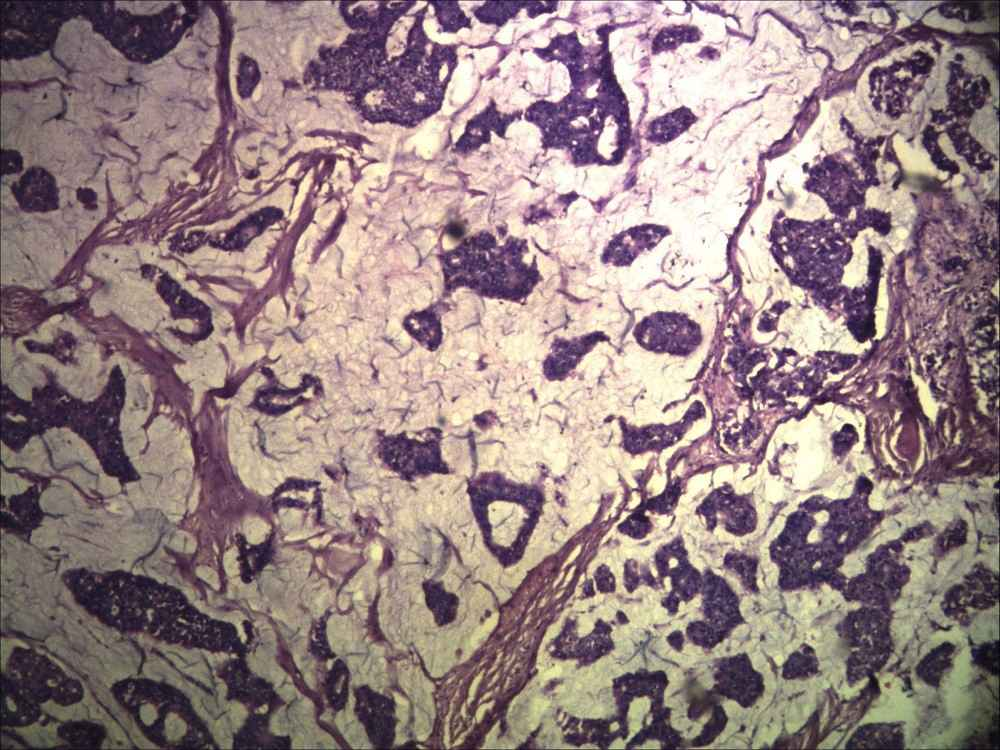 Photomicrograph showing clusters of tumor cells floating in extra cellular pools of mucin. (H&E, ×100)