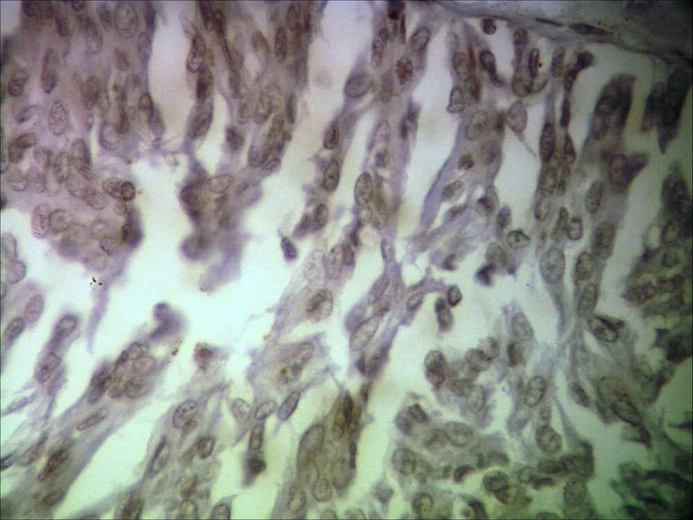 Photomicrograph of mucinous carcinoma showing HER2/ neu negative (IHC ×400)