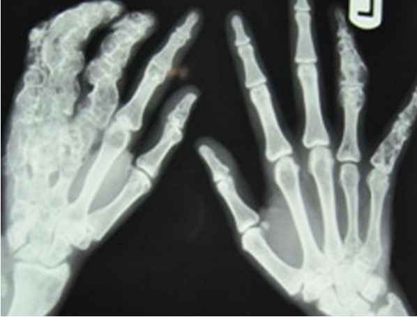 Plain radiograph of both hands revealing multiple enchondromas with calcification