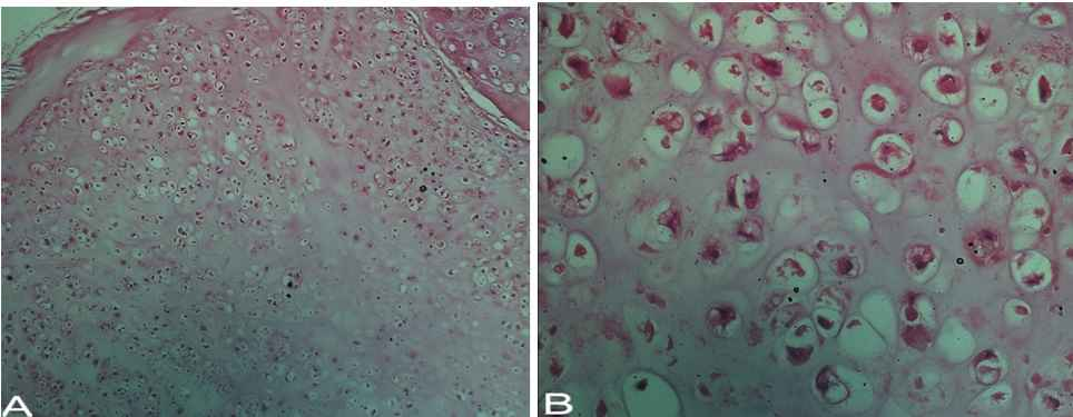 Focal hypercellularity and mild nuclear atypia of enchondroma (100×, A) & (400×, B). These findings are common in Ollier's syndrome and have no significance